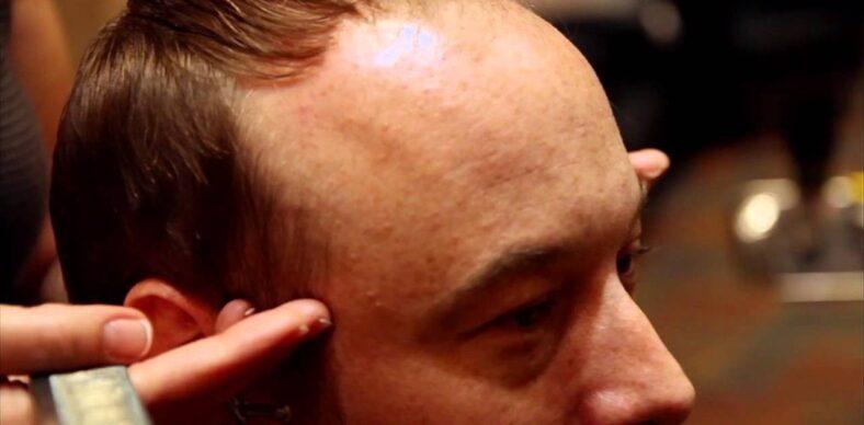 Tips for Balding Men